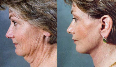 face_lift_02_dr-_ristow